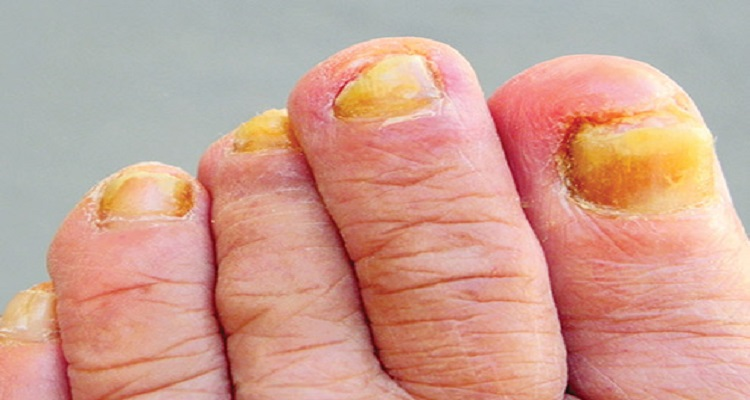 Causes and Treatments for Yellow Toenails