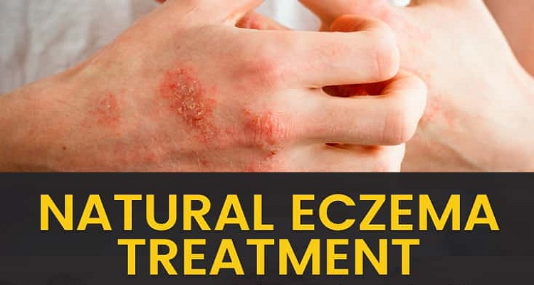 4 Tips to Cure Eczema Quickly with Home Treatment